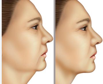 cirurgia-plastica-pescoco-papada